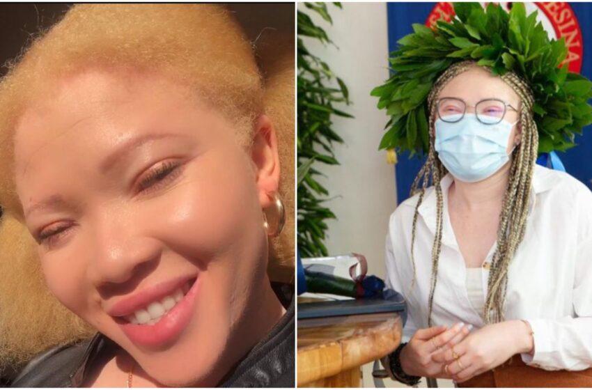 Rapita, violentata e venduta poiché albina in Nigeria, diventa dottoressa a Trento
